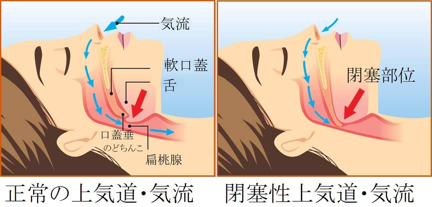 睡眠時無呼吸症候群の原因-横浜市港北区の大倉山耳鼻科病院