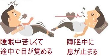 睡眠時無呼吸症候群の症状-横浜市港北区の大倉山耳鼻科病院