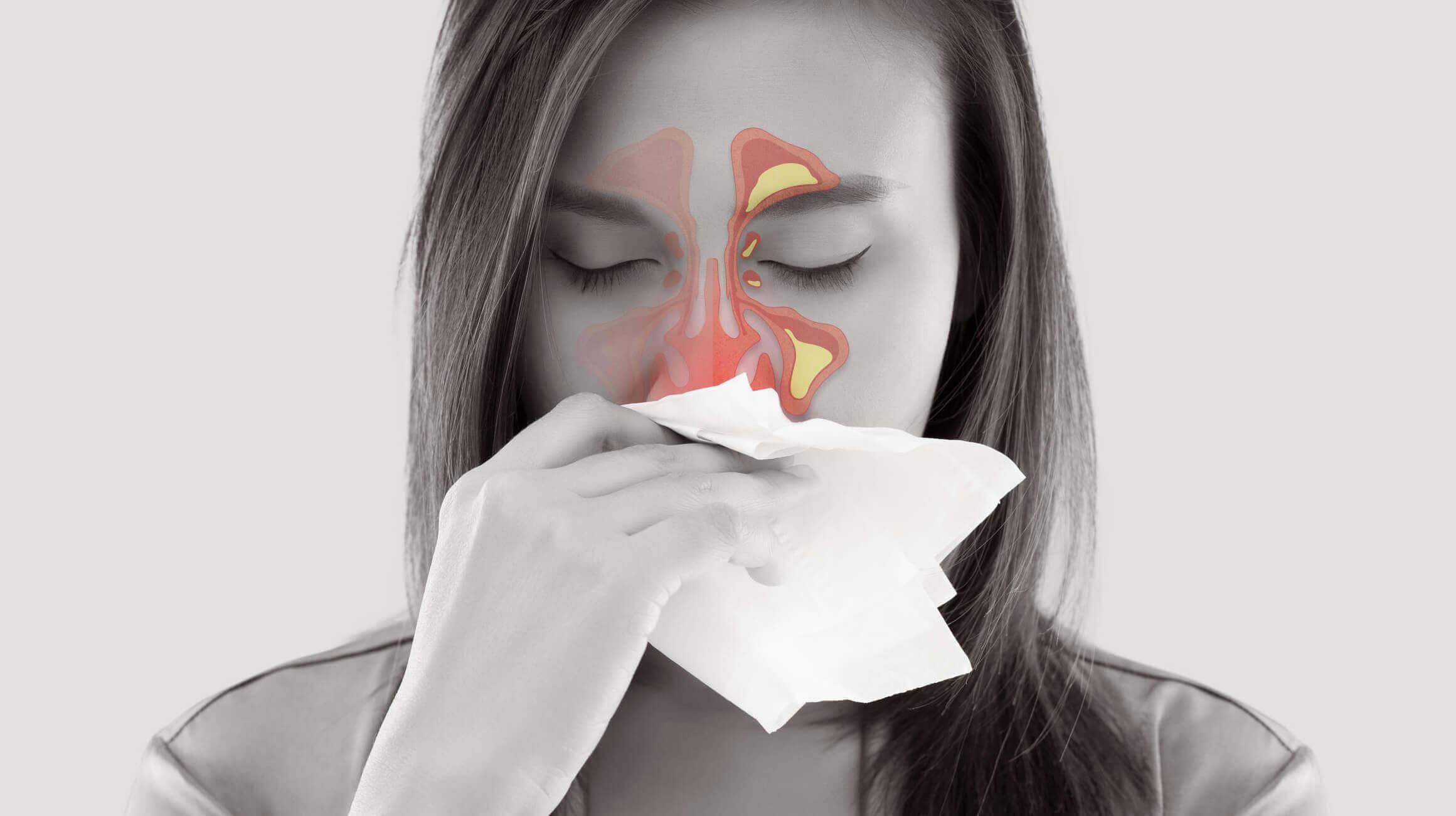 急性副鼻腔炎・蓄膿症の症状で悩んでいる患者・神奈川県横浜市港北区大倉山耳鼻咽喉科