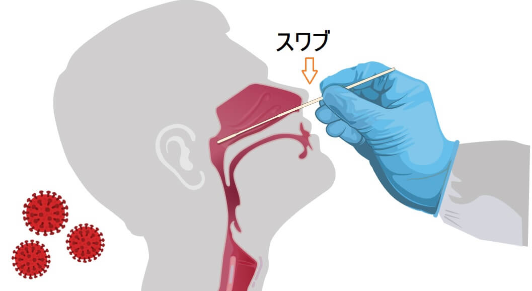 横浜におけるPCR検査-新型コロナウイルス